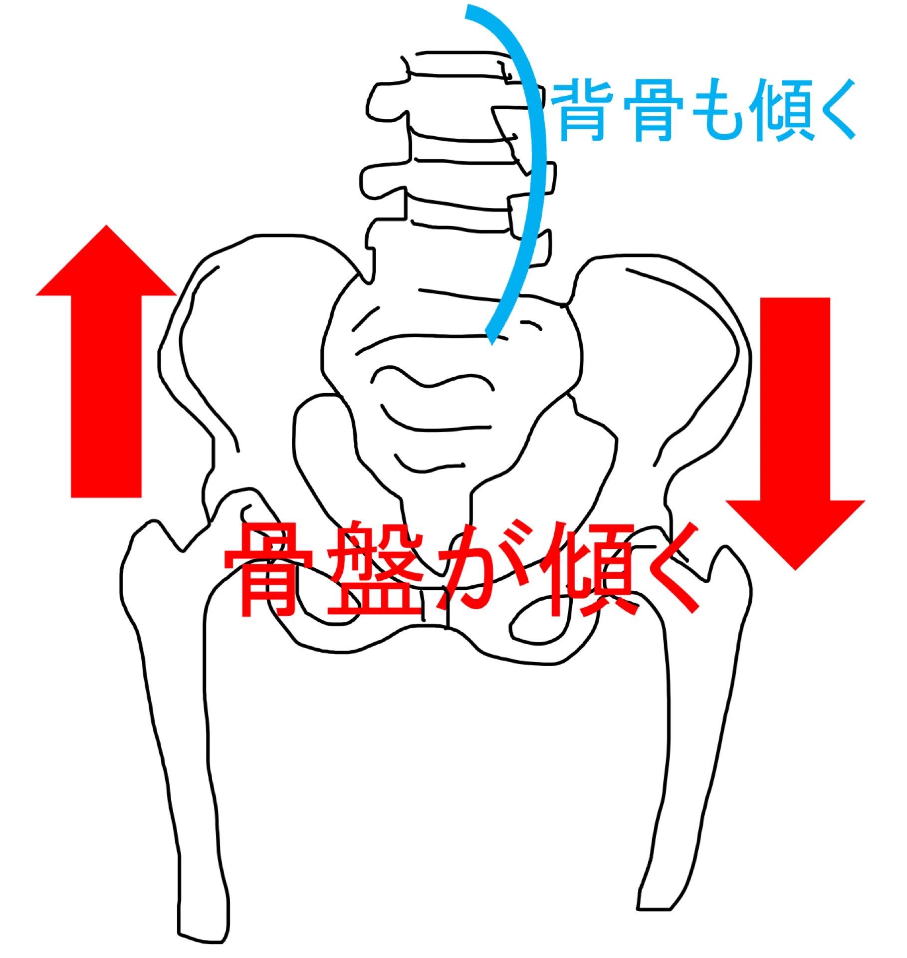 腰椎と骨盤の不安定性