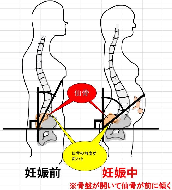 妊娠と腰仙角