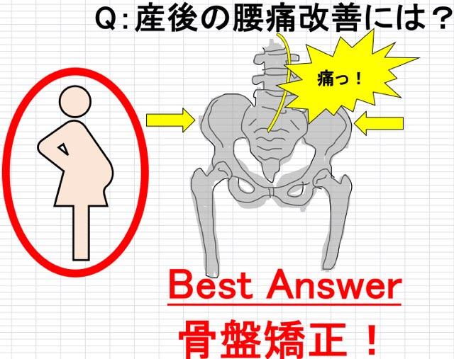 産後の腰痛と骨盤矯正