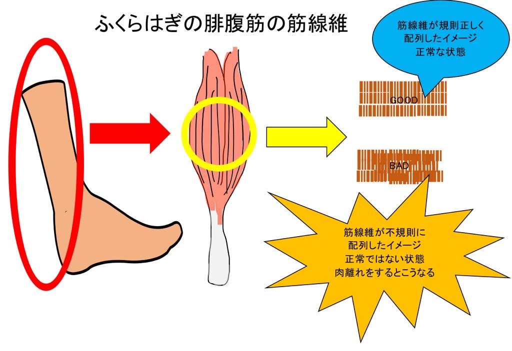 腓腹筋の筋線維
