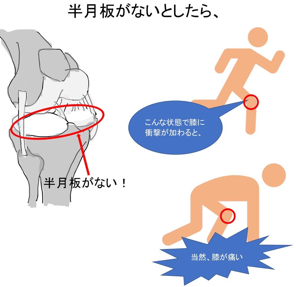 半月板が機能しない膝