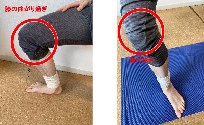 膝の曲がり過ぎと膝の捻れ