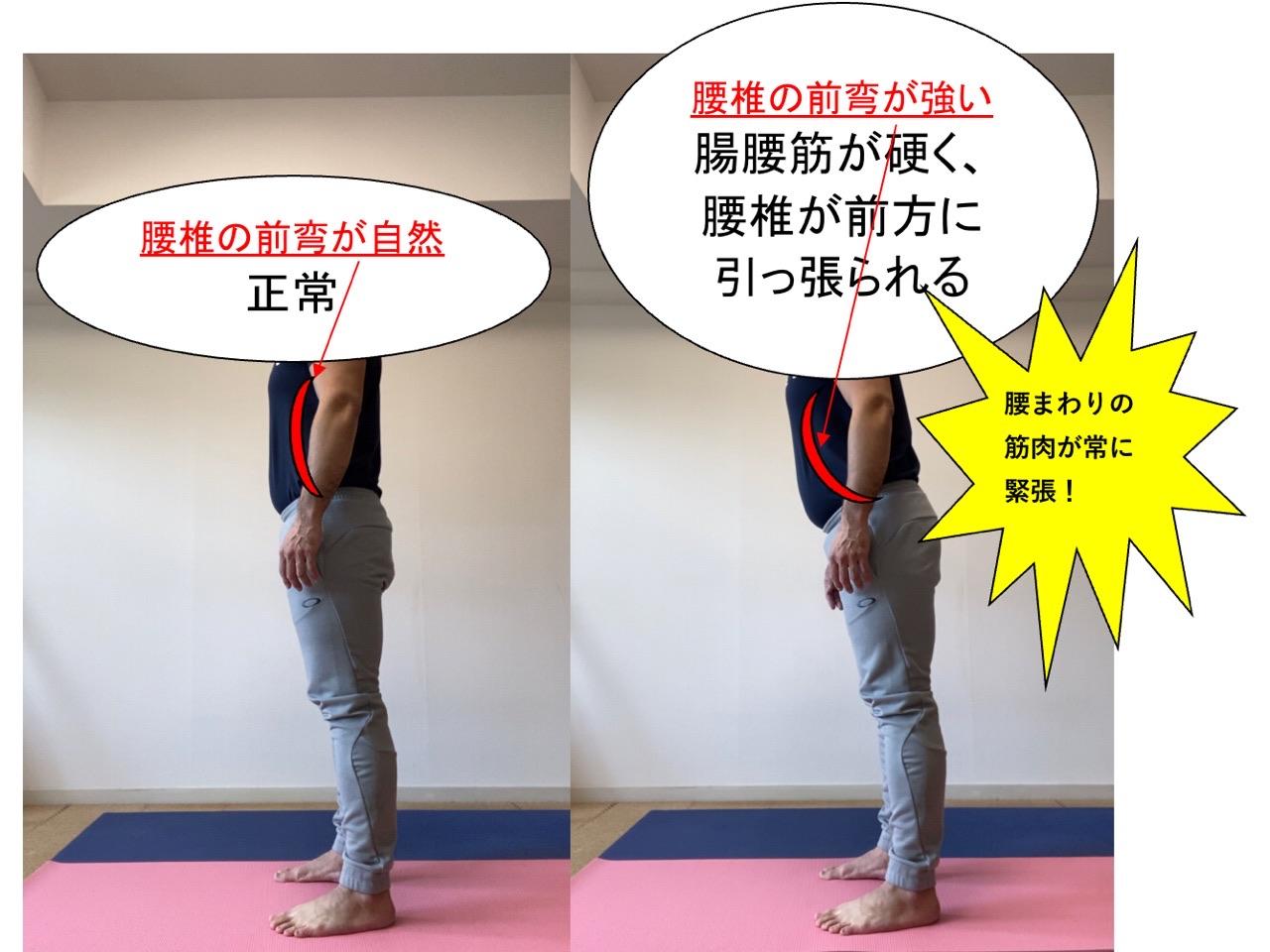 腸腰筋と腰椎の前弯