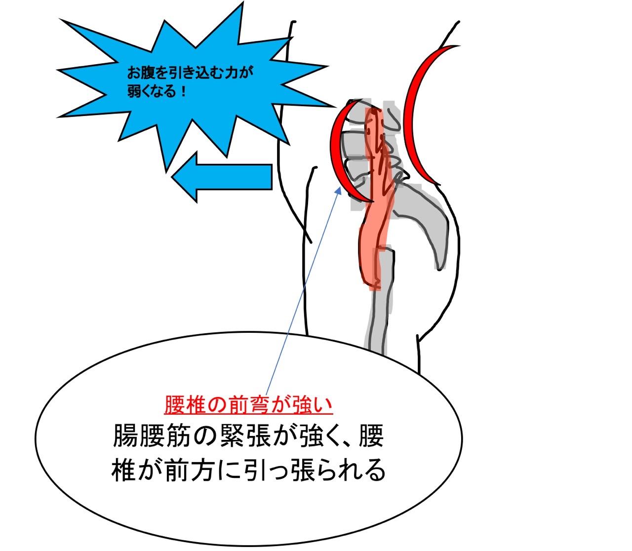腰椎の前弯が大きい