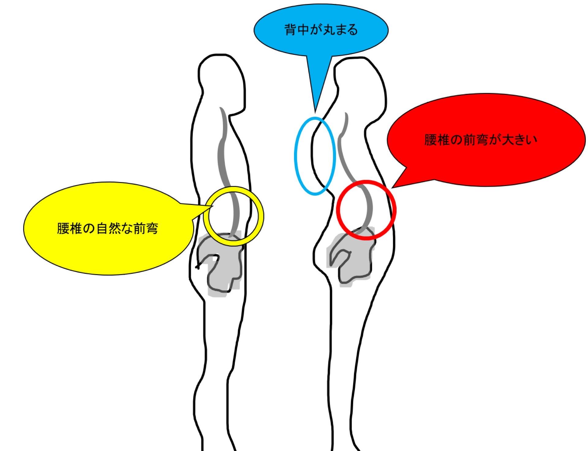 腰椎の前弯と背中の丸み