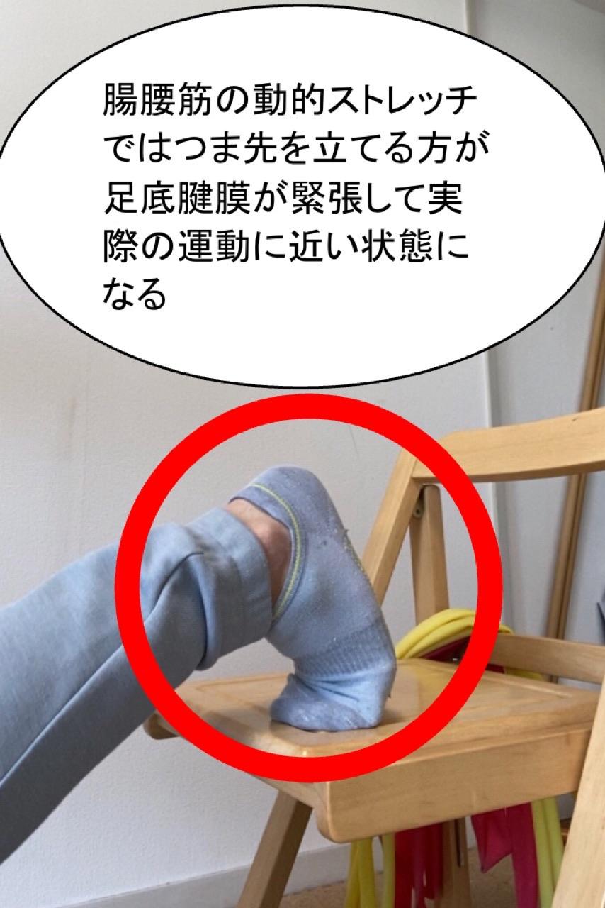 足底腱膜が緊張した状態