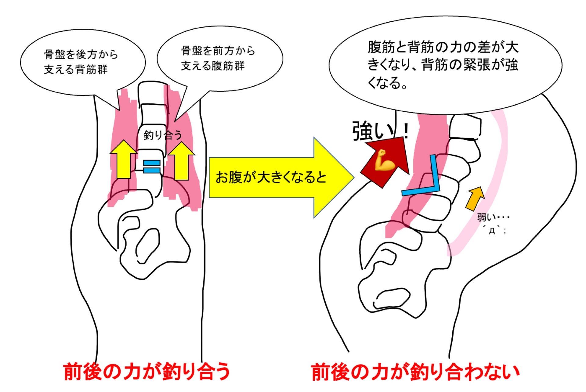 腹筋と背筋の筋力差